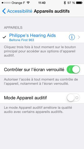 empreinte appareil auditif